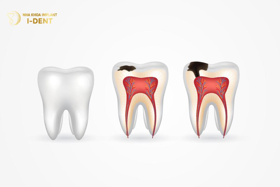 Sâu răng là một bệnh lý rất phổ biến