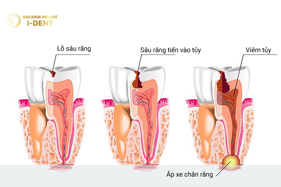 Viêm tủy do sâu răng